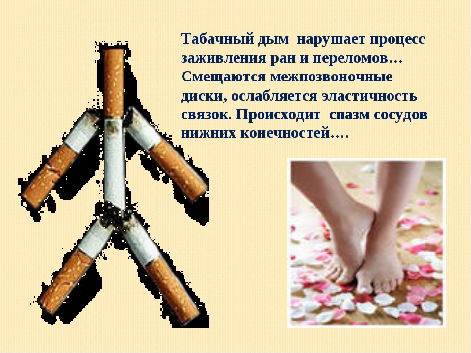 Табачный дым нарушает процесс заживления ран и переломов… Смещаются межпозвон...