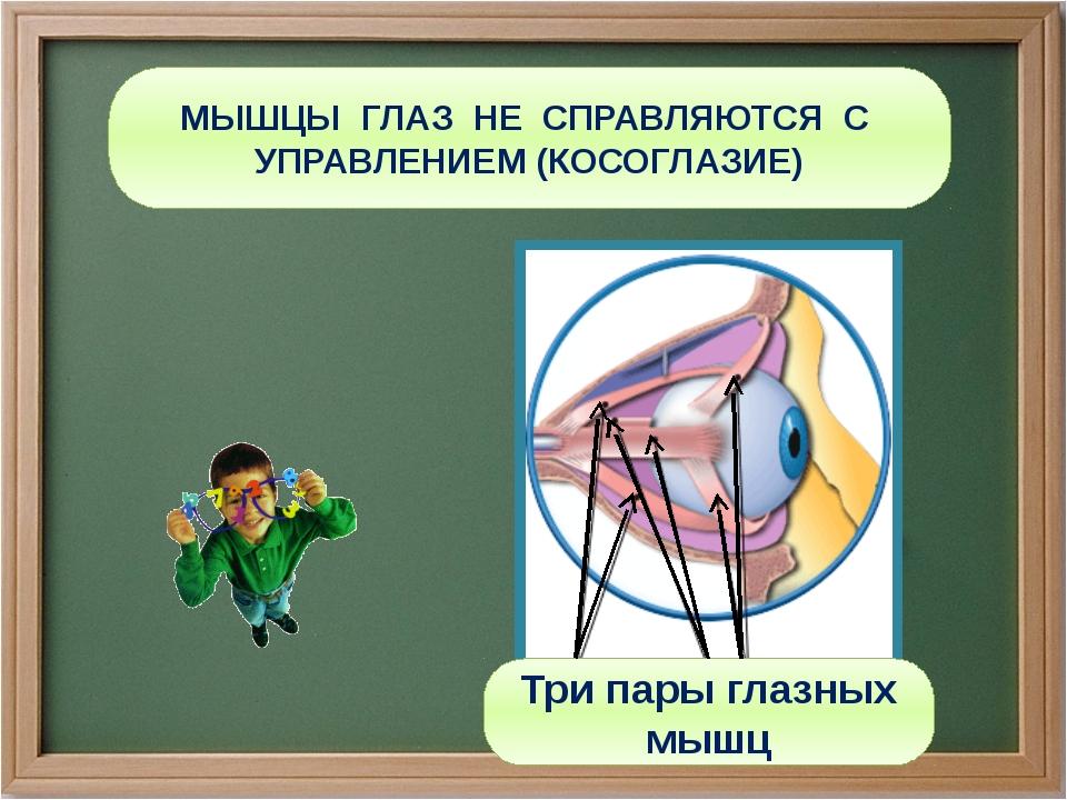 МЫШЦЫ ГЛАЗ НЕ СПРАВЛЯЮТСЯ С УПРАВЛЕНИЕМ (КОСОГЛАЗИЕ) Три пары глазных мышц
