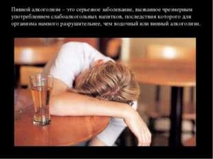 Пивной алкоголизм – это серьезное заболевание, вызванное чрезмерным употребле