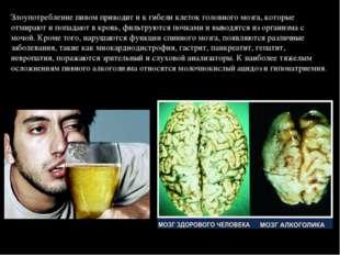 Злоупотребление пивом приводит и к гибели клеток головного мозга, которые отм