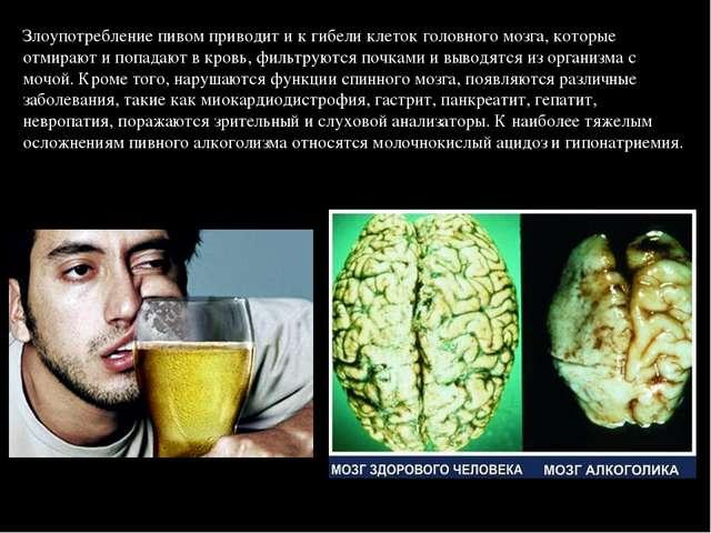 Злоупотребление пивом приводит и к гибели клеток головного мозга, которые отм...