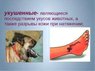 укушенные- являющиеся последствием укусов животных, а также разрывы кожи при
