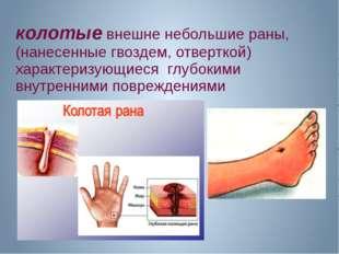 колотые внешне небольшие раны, (нанесенные гвоздем, отверткой) характеризующи
