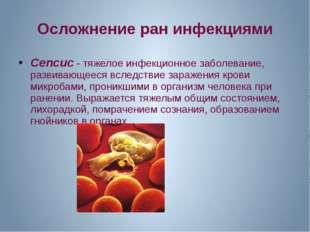 Осложнение ран инфекциями Сепсис - тяжелое инфекционное заболевание, развиваю