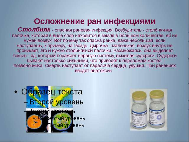 Осложнение ран инфекциями Столбняк - опасная раневая инфекция. Возбудитель -...