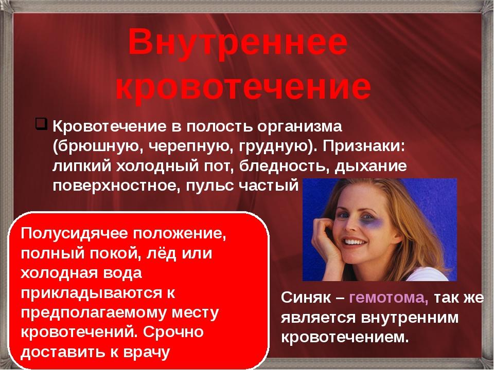 Внутреннее кровотечение Кровотечение в полость организма (брюшную, черепную,...