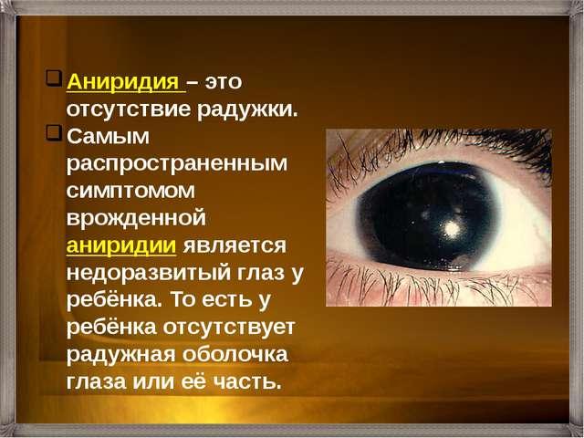 Аниридия – это отсутствие радужки. Самым распространенным симптомом врожденно...