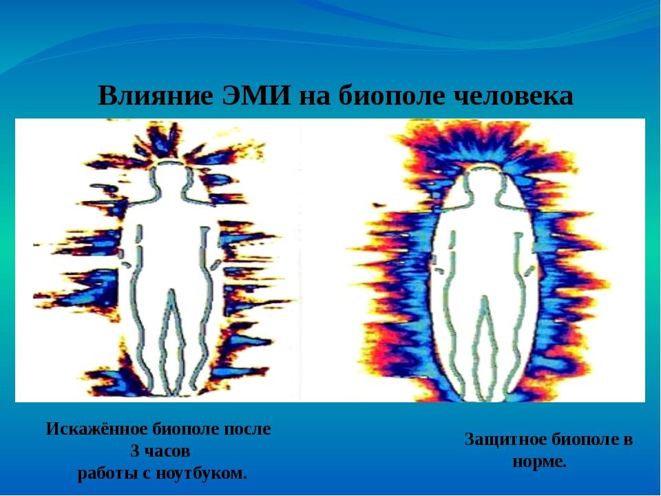 Влияние ЭМИ на биополе человека Защитное биополе в норме. Искажённое биополе...