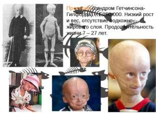 Прогерия (синдром Гетчинсона-Гилфорда) – 1:250 000. Низкий рост и вес, отсутс