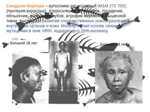 Больной 18 лет Больная 48 лет Синдром Вернера – аутосомно-рецессивный (М1М 27