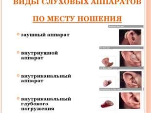 ВИДЫ СЛУХОВЫХ АППАРАТОВ ПО МЕСТУ НОШЕНИЯ заушный аппарат внутриушной аппарат