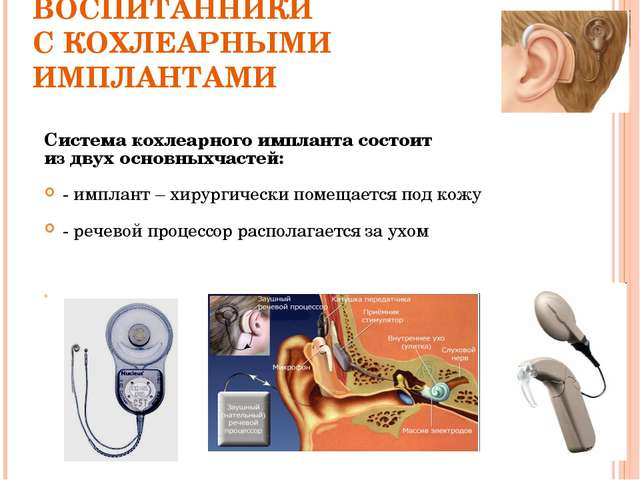 ВОСПИТАННИКИ С КОХЛЕАРНЫМИ ИМПЛАНТАМИ Система кохлеарного импланта состоит из...