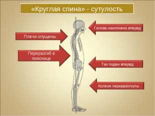 «Круглая спина» - сутулость