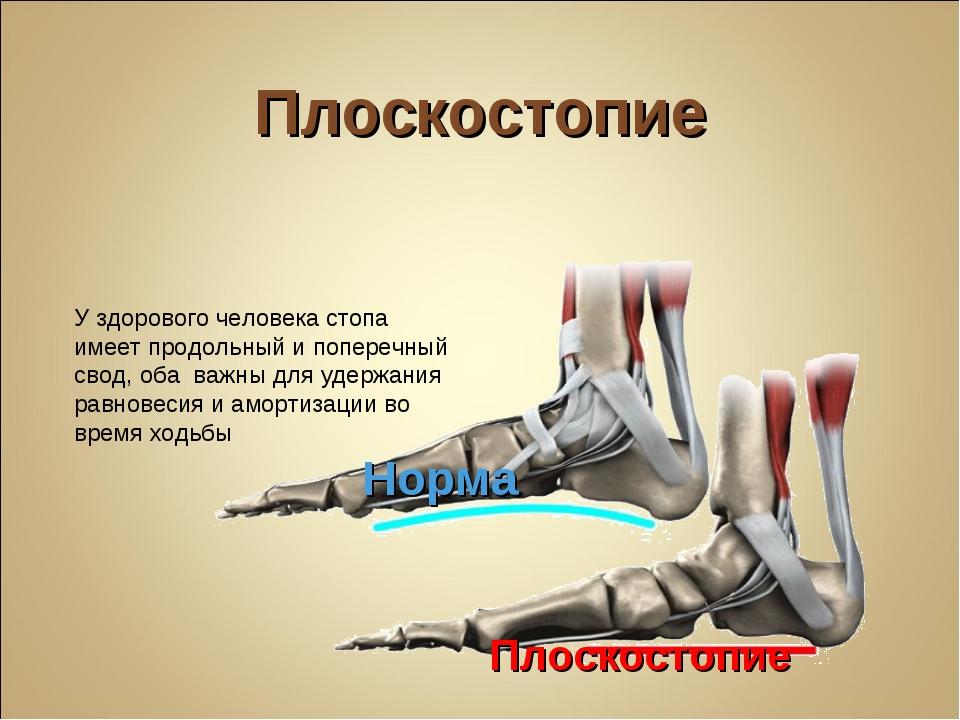 Плоскостопие Норма Плоскостопие У здорового человека стопа имеет продольный и...