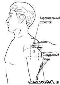 http://www.domsovetof.ru/_pu/5/95923.jpg