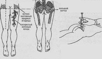http://www.med39.ru/inject/podkognie-inekcii8.jpg