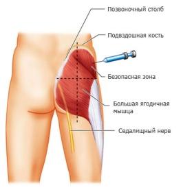 http://fitness-body.ru/wp-content/uploads/2013/11/ukol-v-yagodicu-001.jpg