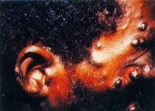 фото саркомы капоши головы при спиде