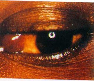 фото саркомы капоши конъюктивы глаз при спиде