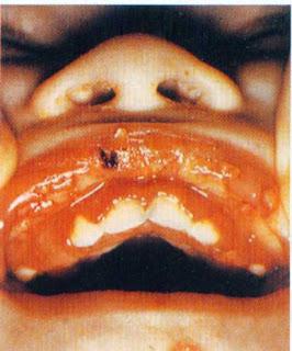 фото герпетического гингивостоматита при спиде