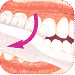 очищение наружных поверхностей зубов, стоматология Евродент
