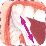 очищение жевательных поверхностей зубов, стоматологическая клиника Евродент